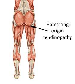 Kuvasd näkyy hyvin paikannus, mistä kipu tuntui lähtevän. Ainoa kipukohta tuo ei ole, mutta selvästi se alkupiste. Kuva lainattu: http://www.rehab4runners.co.uk/running-injuries/hip-groin-pain/hamstring-origin-tendinopathy/